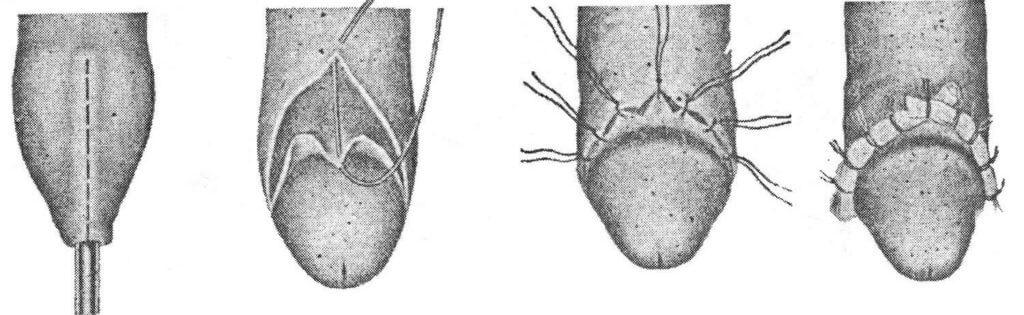 Обрезание полового члена фото